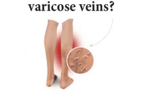 Varicose veins and hemorrhoids